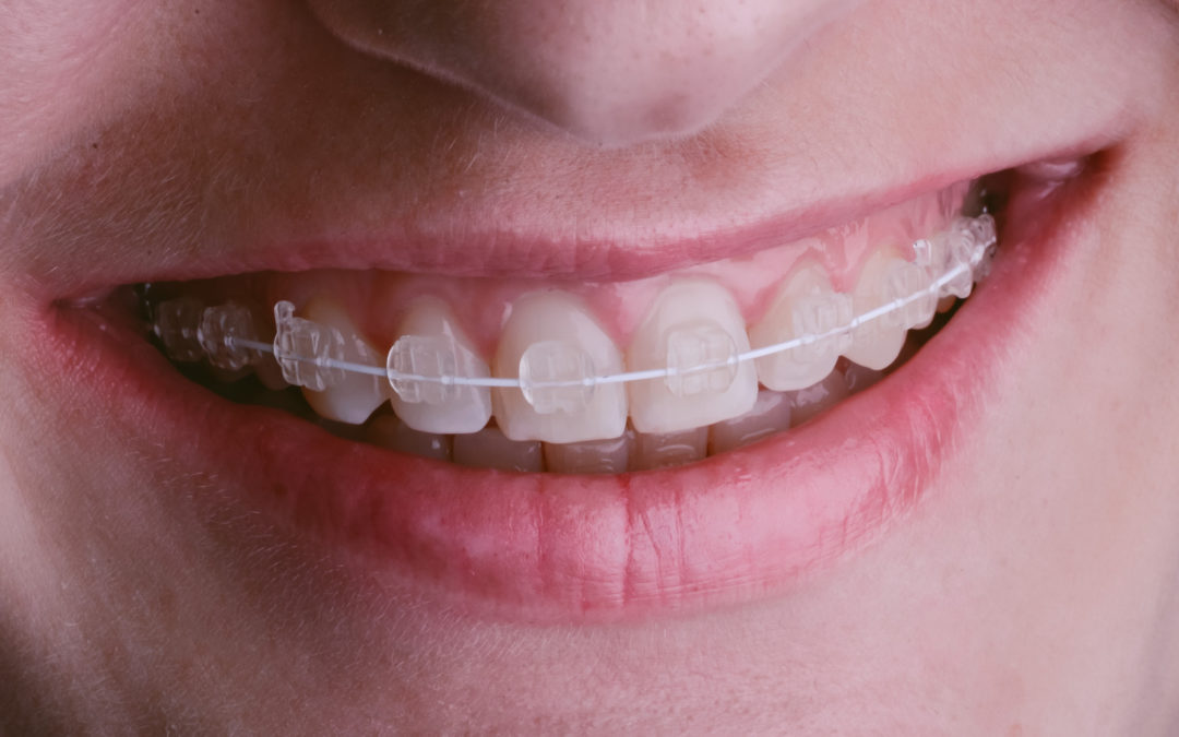 Different types of child braces